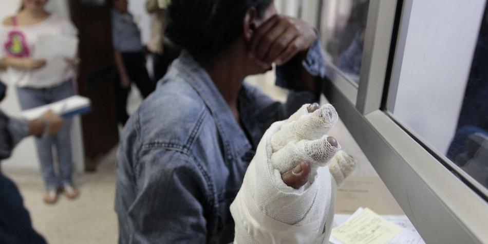 Las fiestas de fin de año dejaron 208 lesionados por pólvora