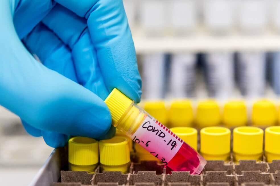 En vivo: Colombia reporta 33.354 casos confirmados de coronavirus el 3 de Junio